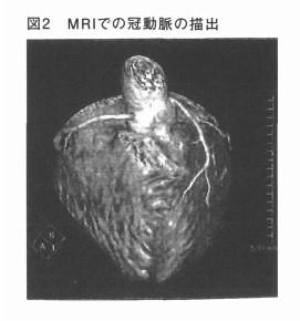 MRIでの冠動脈の描出